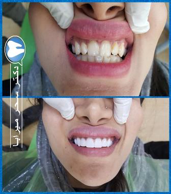 مجرب ترین متخصص زیبایی دندان درتهران