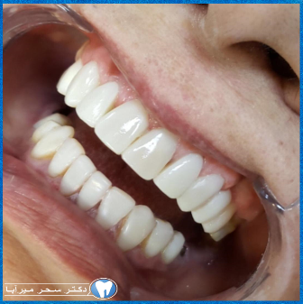 تاثیر دندان برلبخند