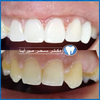 دندان های زیبا