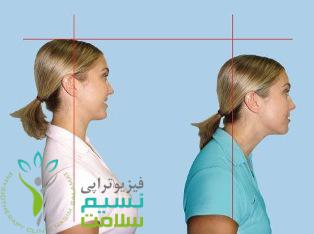 قوس گردن (سر و گردن به جلو)