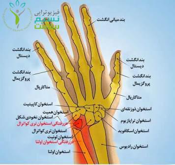 دررفتگی مچ دست